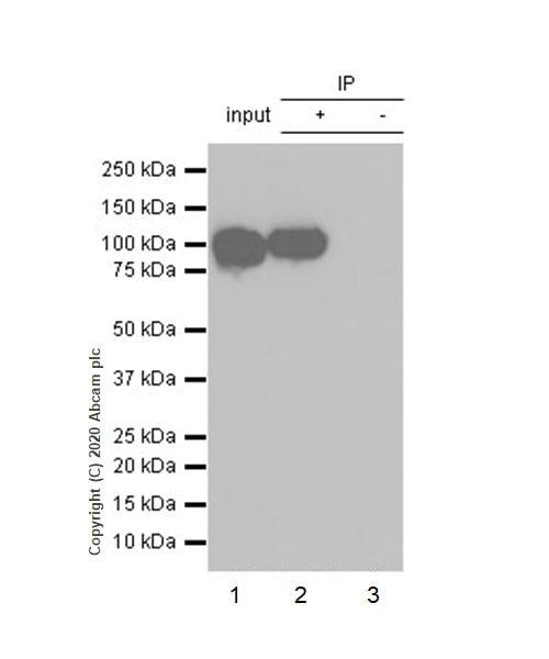 Immunoprecipitation - Anti-alpha Actinin 4 antibody [EPR2533(2)] (ab108198)