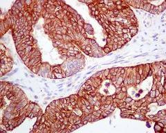 Immunohistochemistry (Formalin/PFA-fixed paraffin-embedded sections) - Anti-APG5L/ATG5 antibody [EPR1755(2)] (ab108327)