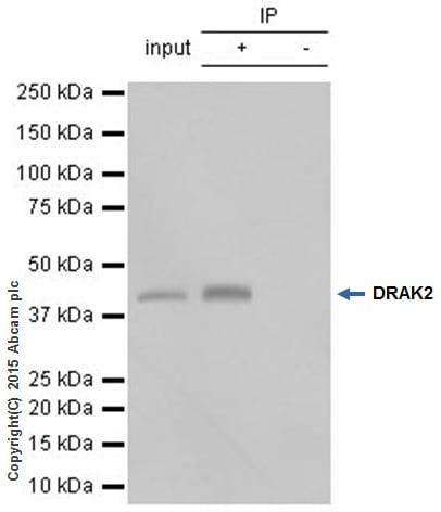 Immunoprecipitation - Anti-DRAK2 antibody [EPR3163Y] (ab108373)
