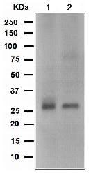 Western blot - Anti-Bcl10 antibody [EPR3174] (ab108412)