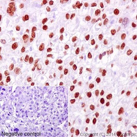 Immunohistochemistry (Formalin/PFA-fixed paraffin-embedded sections) - Anti-FOXA2 antibody [EPR4466] (ab108422)