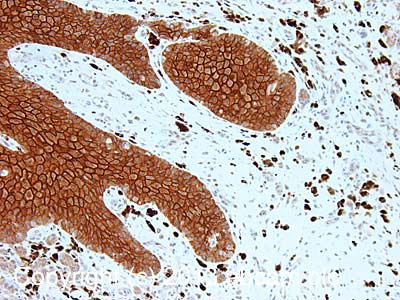 Immunohistochemistry (Formalin/PFA-fixed paraffin-embedded sections) - Anti-Desmoglein 1 antibody [32-2B] (ab108490)