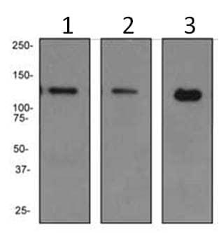 Western blot - Anti-PKN antibody [EPR3238] (ab108973)