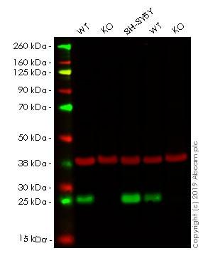 Western blot - Anti-PGP9.5 antibody [EPR4118] (ab108986)