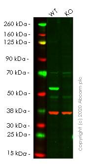 Western blot - Anti-SQSTM1 / p62 antibody [EPR4844] - Autophagosome Marker (ab109012)