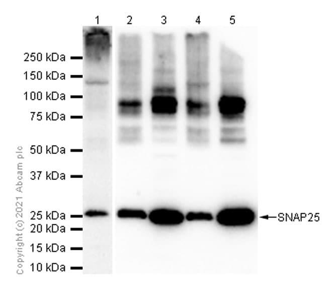 Western blot - Anti-SNAP25 antibody [EPR3275] (ab109105)