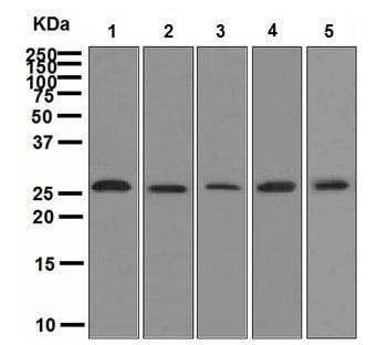 Western blot - Anti-Neurogenin 2 antibody [EPR4178] (ab109172)