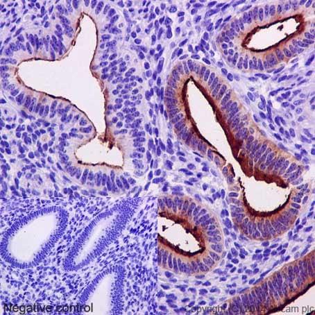 Immunohistochemistry (Formalin/PFA-fixed paraffin-embedded sections) - Anti-MUC1 antibody [EPR1023] (ab109185)