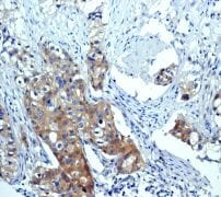 Immunohistochemistry (Formalin/PFA-fixed paraffin-embedded sections) - Anti-mTOR (phospho S2448) antibody [EPR426(2)] (ab109268)