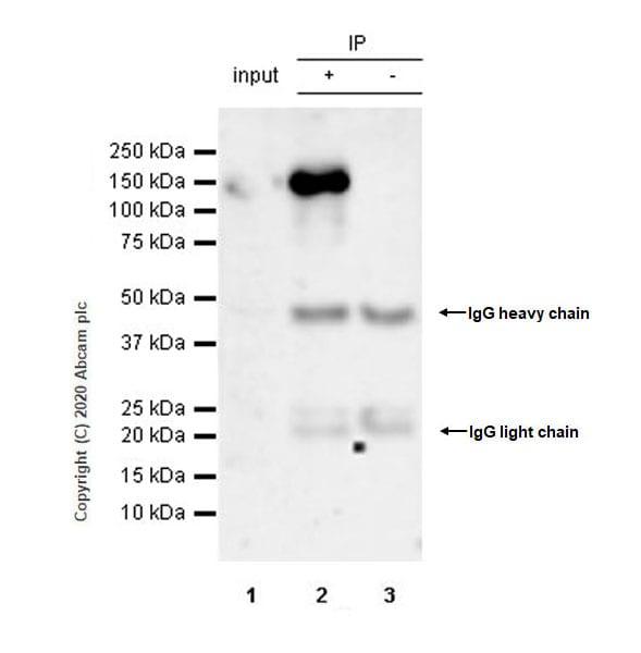Immunoprecipitation - Anti-HDAC9 antibody [EPR5223] (ab109446)