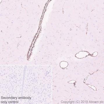 免疫组织化学(福尔马林/PFA固定石蜡切片)-抗PBR抗体[EPR5384](ab109497)