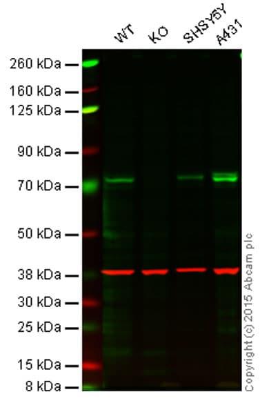 Western blot - Anti-TAK1 antibody [EPR5984] (ab109526)
