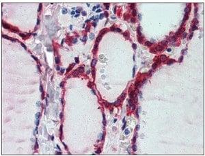 Immunohistochemistry (Formalin/PFA-fixed paraffin-embedded sections) - Peroxiredoxin 1 antibody (ab109766)