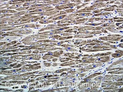 Immunohistochemistry (Formalin/PFA-fixed paraffin-embedded sections) - Anti-Adenine Nucleotide Translocase Immunocapture antibody [5F51BB5AG7] (ab109864)