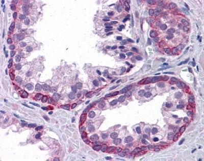 Immunohistochemistry (Formalin/PFA-fixed paraffin-embedded sections) - Anti-KPNA6 antibody (ab110016)
