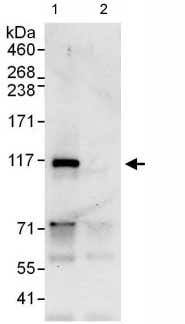 Immunoprecipitation - Anti-MYSM1 antibody (ab110109)