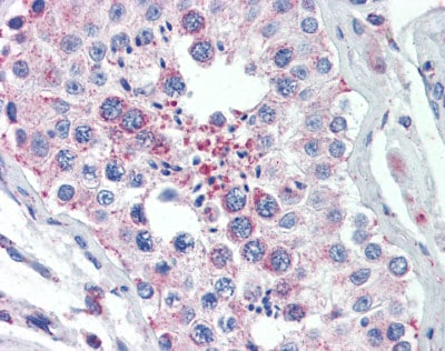 Immunohistochemistry (Formalin/PFA-fixed paraffin-embedded sections) - Anti-SOX2 antibody (ab110145)