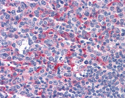 Immunohistochemistry (Formalin/PFA-fixed paraffin-embedded sections) - Anti-GABPB2 antibody (ab110197)