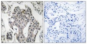 Immunohistochemistry (Formalin/PFA-fixed paraffin-embedded sections) - Anti-RAB3GAP2 antibody (ab110462)