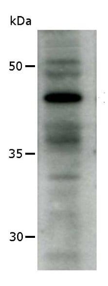 Western blot - Anti-AP2 gamma antibody [3B5] (ab110635)