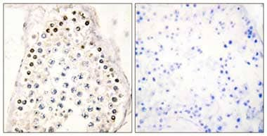 Immunohistochemistry (Formalin/PFA-fixed paraffin-embedded sections) - Anti-HOXB1 antibody (ab110805)