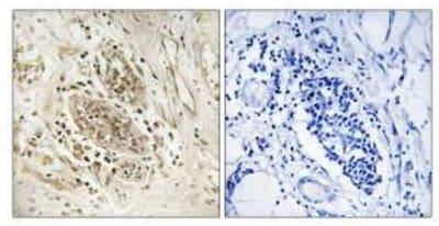 Immunohistochemistry (Formalin/PFA-fixed paraffin-embedded sections) - Anti-POLE antibody (ab110876)