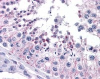 Immunohistochemistry (Formalin/PFA-fixed paraffin-embedded sections) - Anti-Frizzled 9 antibody (ab110886)