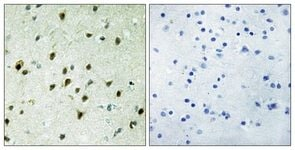 Immunohistochemistry (Formalin/PFA-fixed paraffin-embedded sections) - Anti-MAD4 antibody (ab111062)