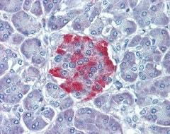 Immunohistochemistry (Formalin/PFA-fixed paraffin-embedded sections) - Anti-Rsk 2 / MAPKAP Kinase 1b antibody (ab111068)