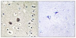 Immunohistochemistry (Formalin/PFA-fixed paraffin-embedded sections) - Anti-TIE2 antibody (ab111074)
