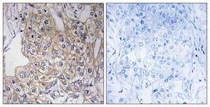 Immunohistochemistry (Formalin/PFA-fixed paraffin-embedded sections) - Anti-TNXB antibody (ab111270)