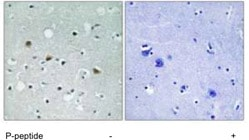 Immunohistochemistry (Formalin/PFA-fixed paraffin-embedded sections) - Anti-LATS1 +LATS2 (phospho T1079 + T1041) antibody (ab111344)
