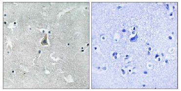 Immunohistochemistry (Formalin/PFA-fixed paraffin-embedded sections) - Anti-Bax (phospho S184) antibody (ab111391)