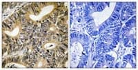 Immunohistochemistry (Formalin/PFA-fixed paraffin-embedded sections) - Anti-eIF4EBP1 (phospho T70) antibody (ab111421)