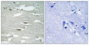 Immunohistochemistry (Formalin/PFA-fixed paraffin-embedded sections) - Anti-Integrin linked ILK (phospho S246) antibody (ab111435)