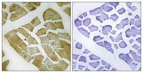 Immunohistochemistry (Formalin/PFA-fixed paraffin-embedded sections) - Anti-MYH4 antibody (ab111442)