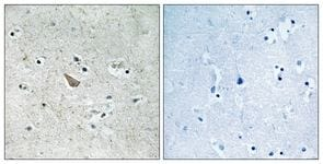 Immunohistochemistry (Formalin/PFA-fixed paraffin-embedded sections) - Anti-Ephrin B (phospho Y329) antibody (ab111487)