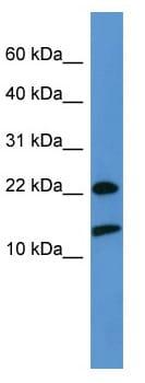 Western blot - Anti-RPS27A antibody (ab111598)