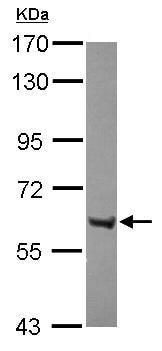 Western blot - Anti-ZNF642 antibody (ab111603)