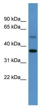 Western blot - Anti-Glycogenin 1 antibody (ab111711)