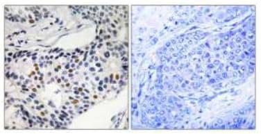 Immunohistochemistry (Formalin/PFA-fixed paraffin-embedded sections) - Anti-Wee1 (phospho S53) antibody (ab111820)