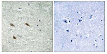 Immunohistochemistry (Formalin/PFA-fixed paraffin-embedded sections) - Anti-Raf1 (phospho S289) antibody (ab111829)