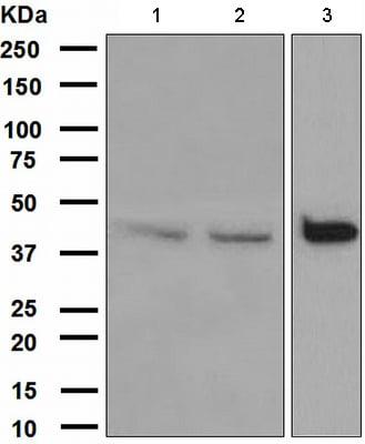 Western blot - Anti-DAP Kinase 2 antibody [EPR1634(2)] (ab111928)