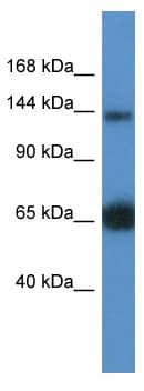 Western blot - Anti-RAPGEF2 antibody (ab112093)