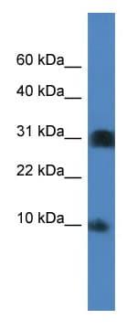 Western blot - Anti-Histone H2B K antibody (ab112098)