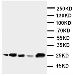 Western blot - Anti-IGFBP6 antibody (ab112491)