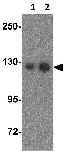 Western blot - Anti-AP3B2 antibody (ab113100)
