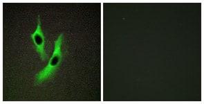 Immunocytochemistry/ Immunofluorescence - Anti-STEAP4 antibody (ab113230)