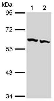 Western blot - Anti-TCP1 beta antibody (ab113242)