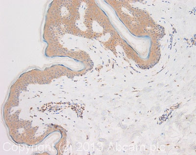 Immunohistochemistry (Formalin/PFA-fixed paraffin-embedded sections) - Anti-ARHGAP11A antibody (ab113261)